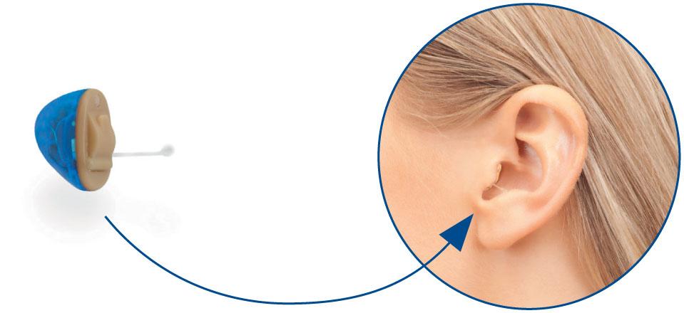 Sonetik - IN-EAR